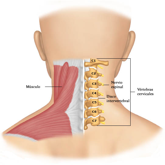 Dolor Cervical - Tratamiento - Acuchina by Dr Chao Chen
